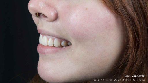 Diseño de Sonrisa 3D
