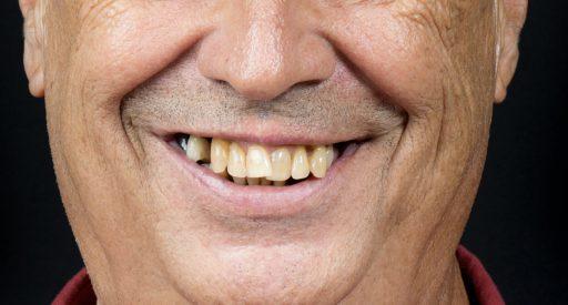 Diseño de Sonrisas 2D